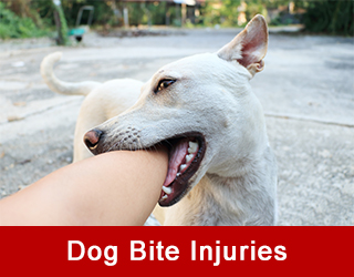 Dog-Bite-Injuries
